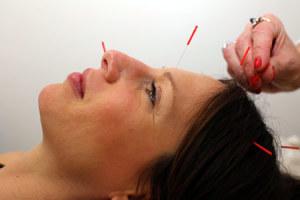 Acupuncturist Los Angeles