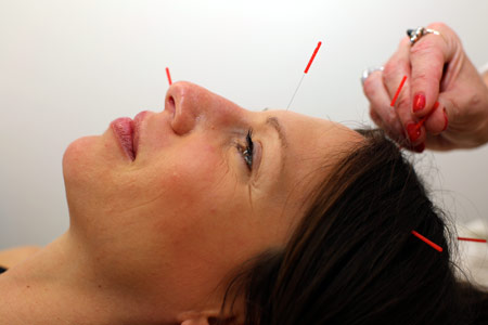 Acupuncturist Los Angeles